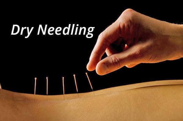 dry needling Dry Needling Open House